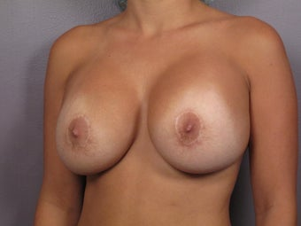 Breast Implant Revision after 311096