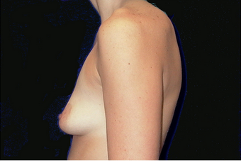 breast augmentation with lift before 630075