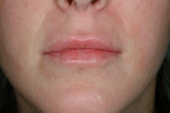 Lip enhancement after 95917