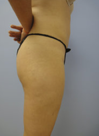 Liposuction after 500528