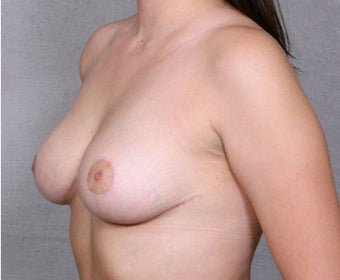 Breast Reduction after 365564