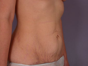 Tummy Tuck  before 304985