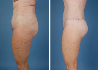 Flank Excision, Abdominoplasty Scar Revision, Liposuction of the Back 303691