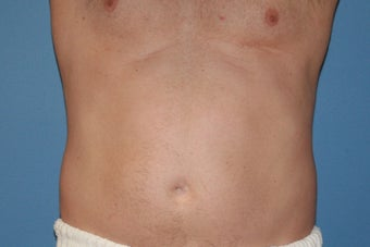 Smartlipo before 91253