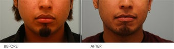 Upper and Lower Lip Reduction before 333433