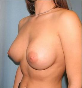 Breast Augmentation after 220278