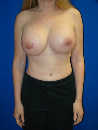 Breast Augmentation Revision after 79499