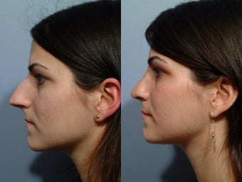 Rhinoplasty before 212569