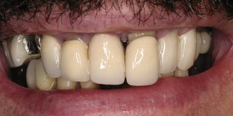 Full mouth rehabilitation using  20 implants to restore 28 teeth before 112629