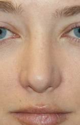 Rhinoplasty after 390972
