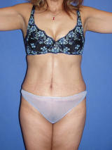 Tummy Tuck Surgery after 122975