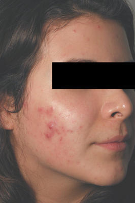 Laser Acne Treatment before 82981