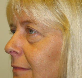 Upper and Lower Eyelid Blepharoplasty before 53230