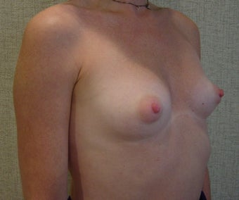 Breast Augmentation 346178