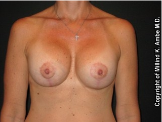 Breast Implant Revision after 542393