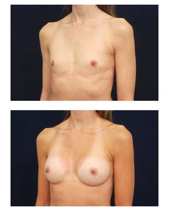 Breast augmentation with silicone implants before 54509