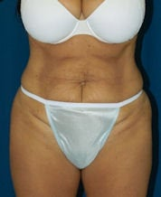 Tummy Tuck before 634288