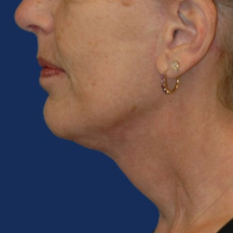 Lower Facelift and Necklift with Platysmaplasty after 243445