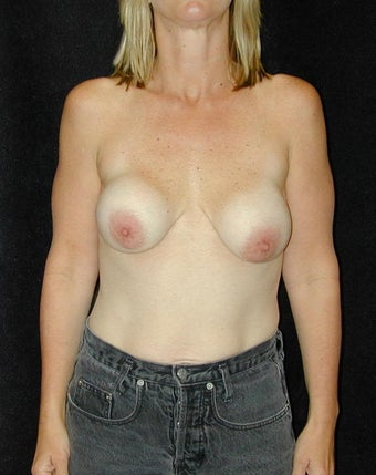 Breast Implant Revision  before 98380