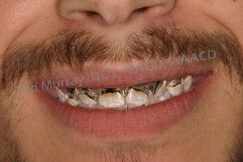 Direct Composite Resin Veneers before 346958