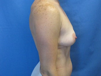 Breast Augmentation  before 364617