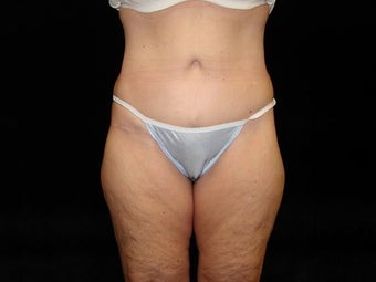 Body Lift with Liposuction of Abdomen, Waist, and Flanks after 203457