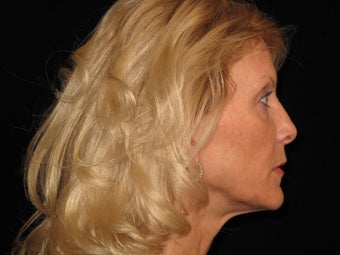 Botox and Restylane 323691