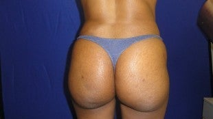 40 year old Brazilian Butt Lift