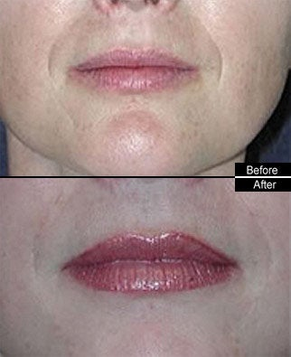 Lip Fillers before 91566
