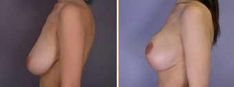 Mastopexy, Breast Lift before 270061