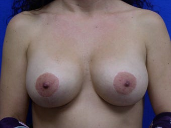 Mastopexy and Breast Augmentation after 475919