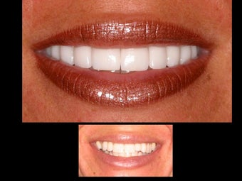 Porcelain veneers before 306847