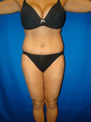 Tummy Tuck Surgery (Abdominoplasty) after 159980