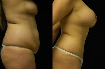 Tummy Tuck and Breast Augmentation- gel implants 392664