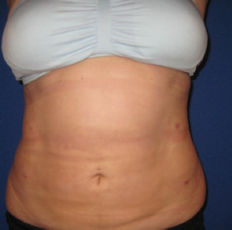 Laser Liposuction after 362289
