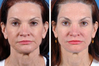 Fillers and Botox Cosmetic before 356475