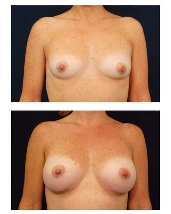 Breast Augmentation before 149605