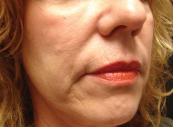 Radiesse Injection into the Cheeks and Nasolabial Folds after 257721
