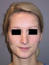 Rhinoplasty before 312843