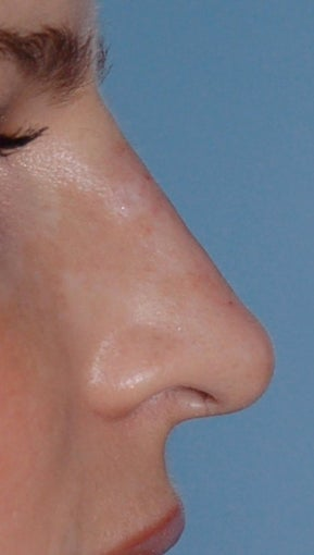 Non Surgical Rhinoplasty after 308291