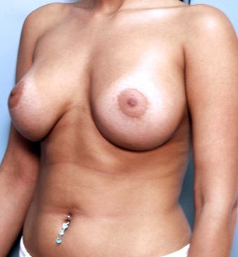 Breast Augmentation Implant Exchange