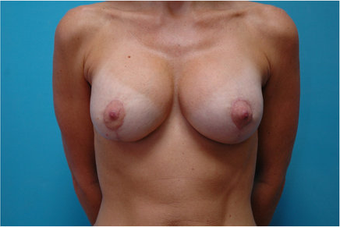 Breast augmentation with Mastopexy