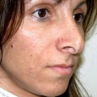 Revision Rhinoplasty before 442998