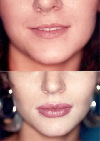 Lip Augmentatoin before 337093