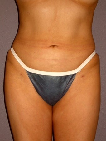 Liposuction after 313998