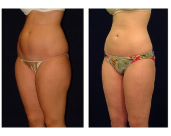 Liposuction before 286715