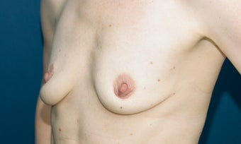 Breast augmentation with silicone gel implants before 134367