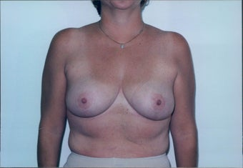 Breast Reduction after 218953