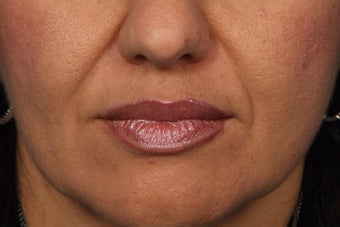 Radiesse to Smile Lines (nasolabial folds) before 308319