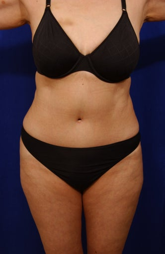 Abdominoplasty with liposculpture of abs, flanks after 82411